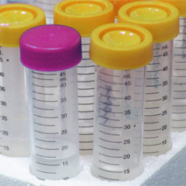 Klinické štúdie: Čo by mal pacient vedieť – II. časť